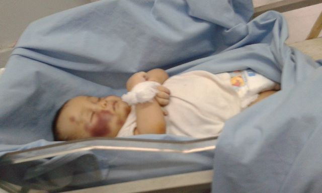Bayinya (3tahun) Mati Tak Wajar, Ibu Kandung dan Ayah Tirinya Menghilang