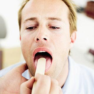 Nguyên nhân chính gây bệnh ung thư vòm họng