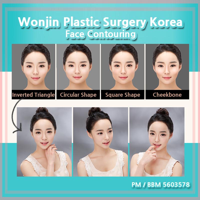 Phenomenal Wonjin Plastic Surgery Korea Face Contouring For Any Facial Shape Hairstyles For Men Maxibearus