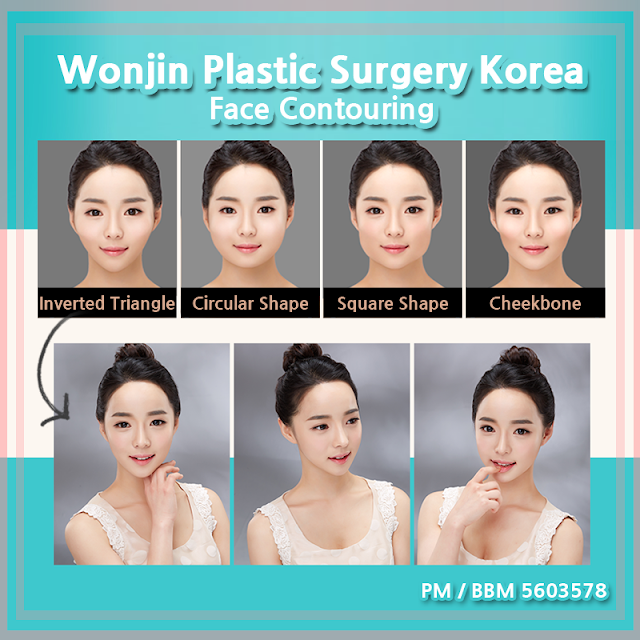 Wonjin Plastic Surgery Korea Face Contouring For Any Facial Shape