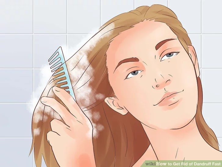 Easy Ways To Shake Off Dandruff
