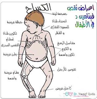 علامات لين العظام عند الاطفال