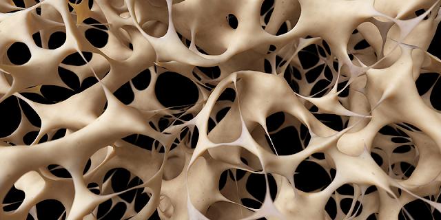 Cum tratam Osteoporoza acasa prin exercitii