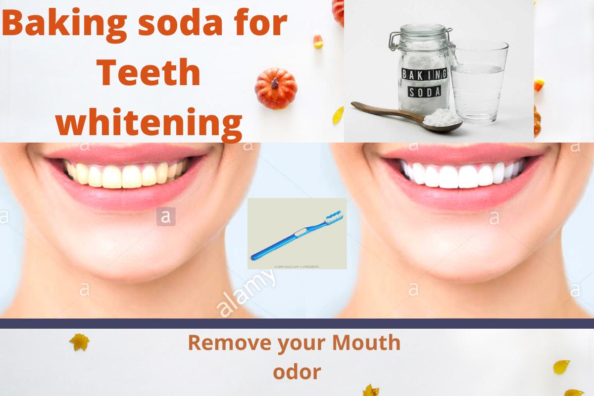 Backing soda For Teeth |  Teeth Whitening