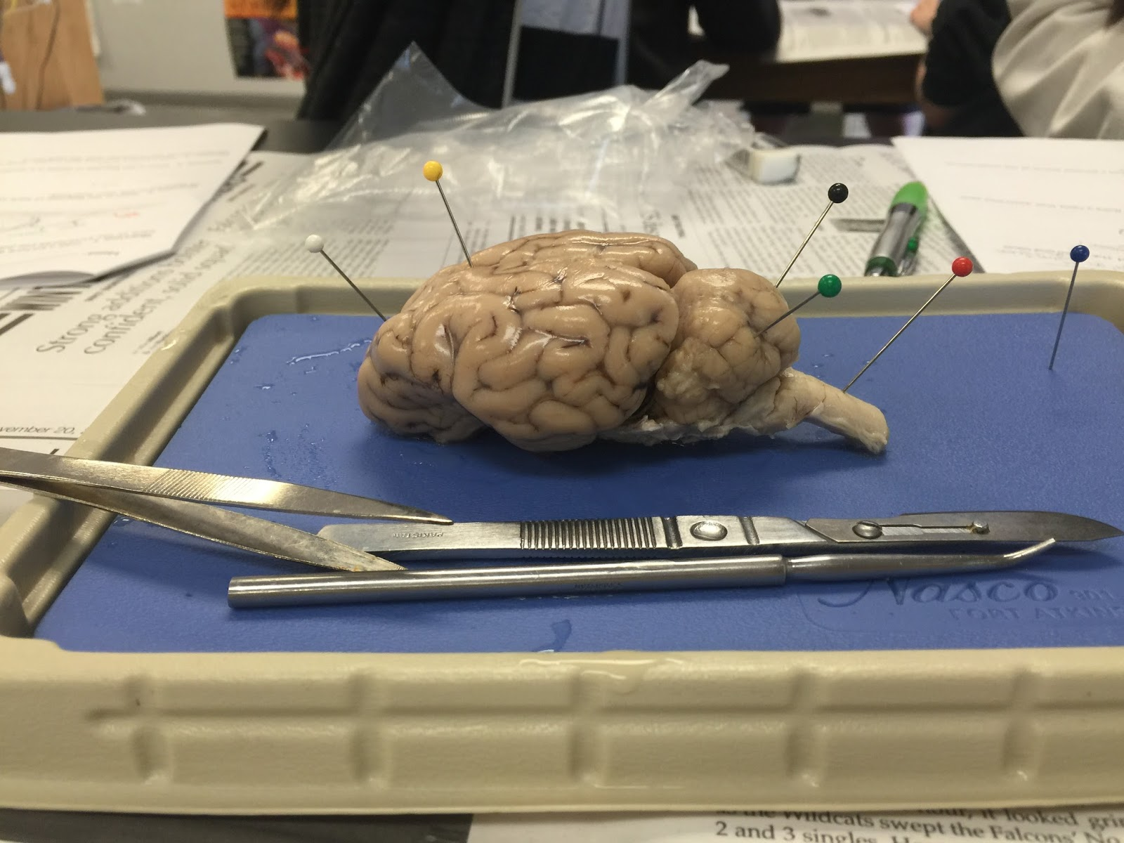 Anatomy and Physiology: Sheep Brain Dissection