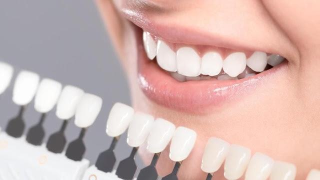 veneer memutihkan gigi