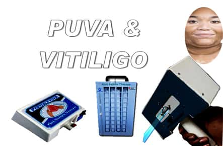 puva therapy for vitiligo