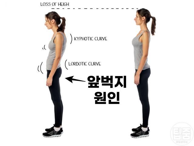 앞벅지 원인,허벅지 앞쪽살 얇아지는 법