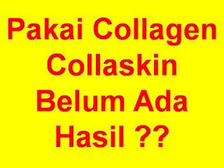 http://www.collagencollaskin.com/