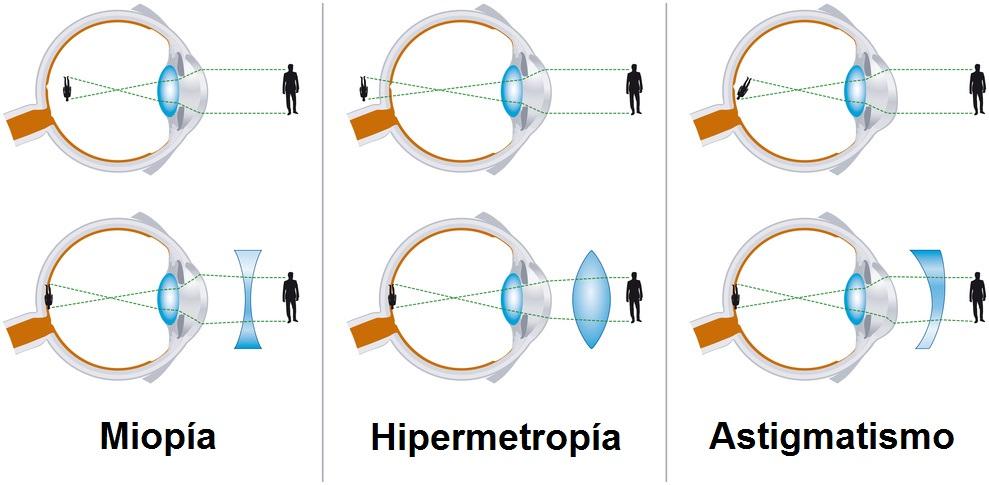 miopie astigmatism hipermetropie