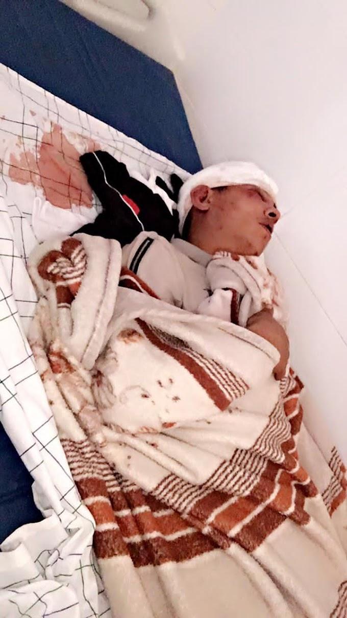Bachar Gdan, joven saharaui de 20 años, recibe una sangrienta paliza a mano de 3 colonos marroquíes en El Aaiún ocupado.