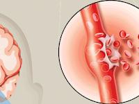 Gejala Penyakit Stroke Ringan dan Cara Pengobatan