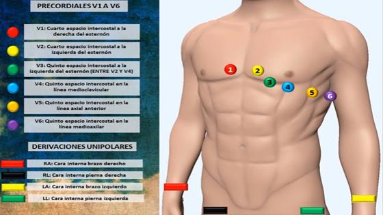 Faq Fak Electrocardiograma Interactiva Colocación De Electrodos