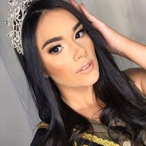 Miss Roraima Teen morre aos 21 anos após cirurgia de emergência