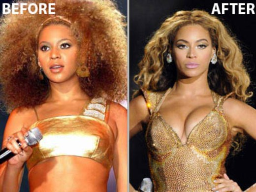 Beyonce Butt Implant 65