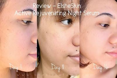 Review ElsheSkin Serum Anti Aging dan Serum Kulit Berminyak