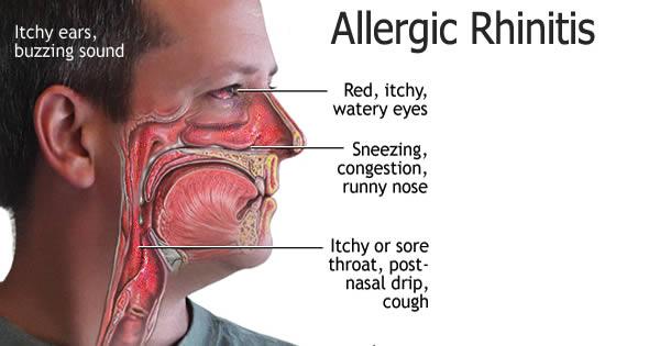 Gejala Alergi Debu