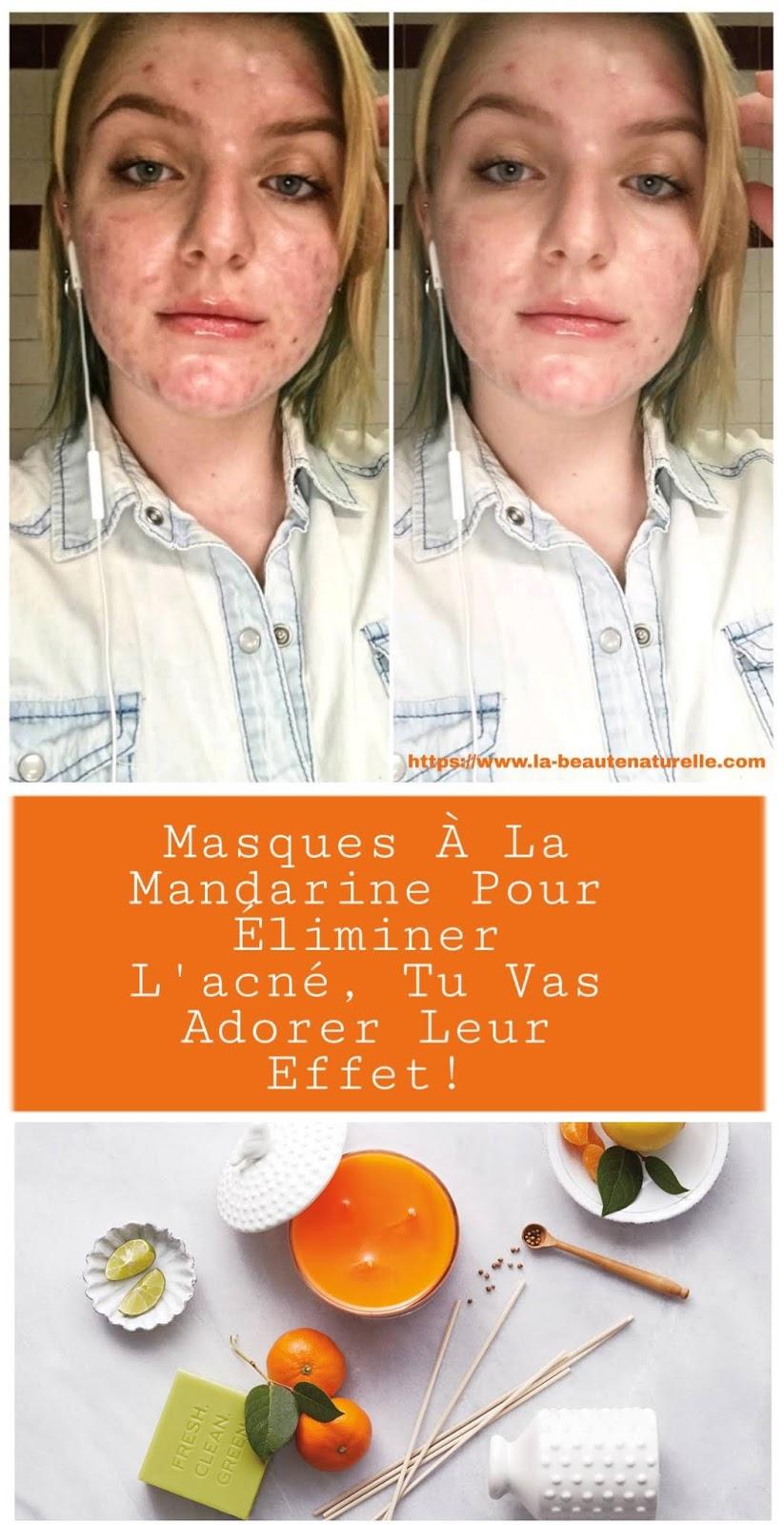 Masques À La Mandarine Pour Éliminer L'acné, Tu Vas Adorer Leur Effet!