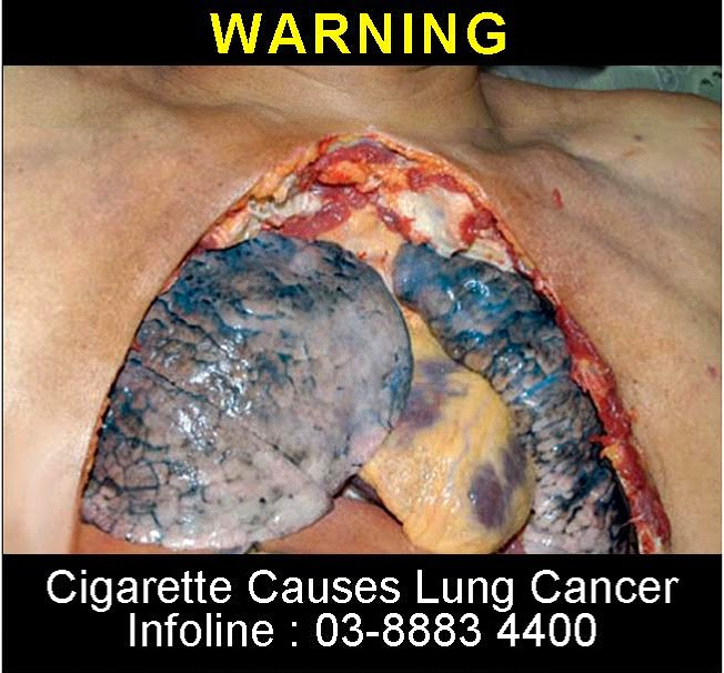 The Implications of Having Lung Cancer
