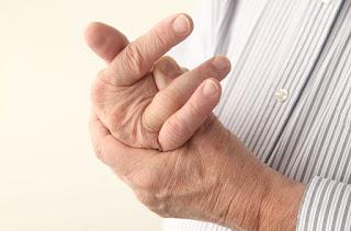 Gicht an den Händen (Chiragra)