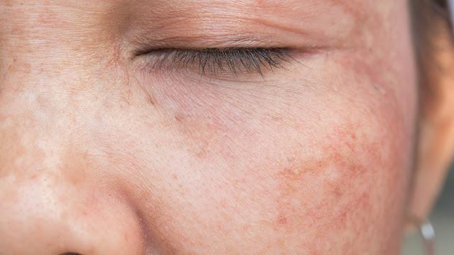 Des pratiques et des imprudences qui font apparaître les taches sur la peau