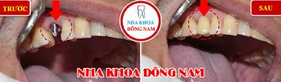 trồng răng implant ở đâu mùa world cup -5