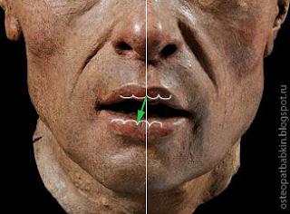 дефлексия во время открытия рта нижняя челюсть отклоняется, и межрезцовая линия уходит с середины.