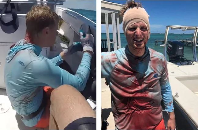 Man Miraculously Survives After Shark Bit His Head While Diving In The Sea