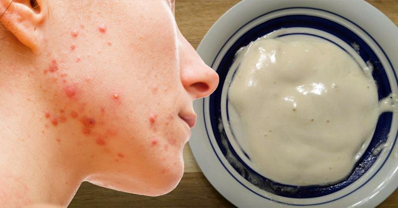 acne, pimples, beauty
