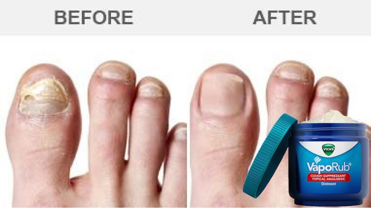 How to treat toenail fungus with vicks - Healthy Lifestyle