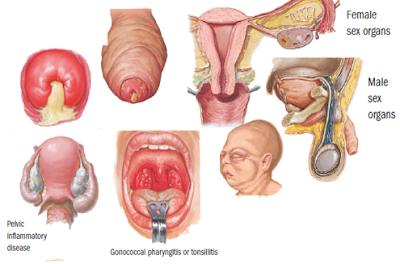 Kenali Penyebab Kencing Nanah Gonore dan Obatnya