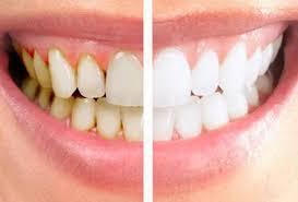 7 Cara Menghilangkan Kerak Gigi dan Memutihkan Gigi Dengan Dengan Baking Soda