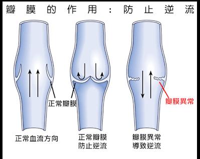 瓣膜發生問題,而無法防止血液逆流