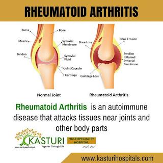 http://www.kasturihospitals.com/orthopaedics/arthritis-care/rheumatoid-arthritis/