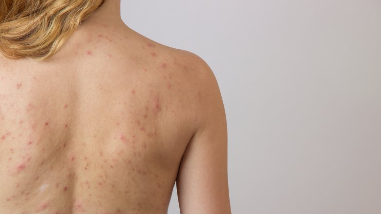 The dreaded acne and bacne