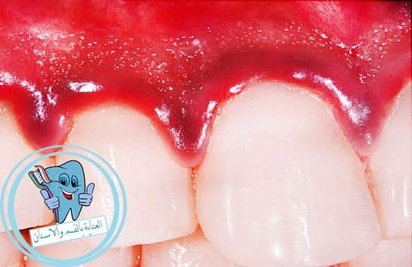 تنازل التعرف على طارد علاج التهاب الاسنان بالمنزل Alsanapropertyinvestments Com