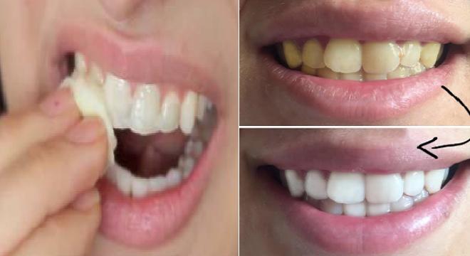 Gigi Kuning Tak Enak Dilihat Ini Cara Memutihkan Gigi Pakai Dua