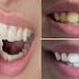 Gigi Kuning tak Enak Dilihat, Ini Cara Memutihkan Gigi Pakai Dua Bahan Alami, Cukup 2 Menit!