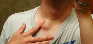 10 Επικίνδυνα συμπτώματα που προειδοποιούν για σοβαρά προβλήματα υγείας. αν δεις το 6ο, τρέξε ΑΜΕΣΩΣ στο νοσοκομείο!