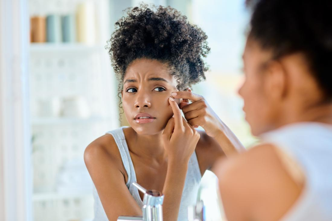 Treatments For Oily and Combination Skin-Home Remedies To Prevent Acne