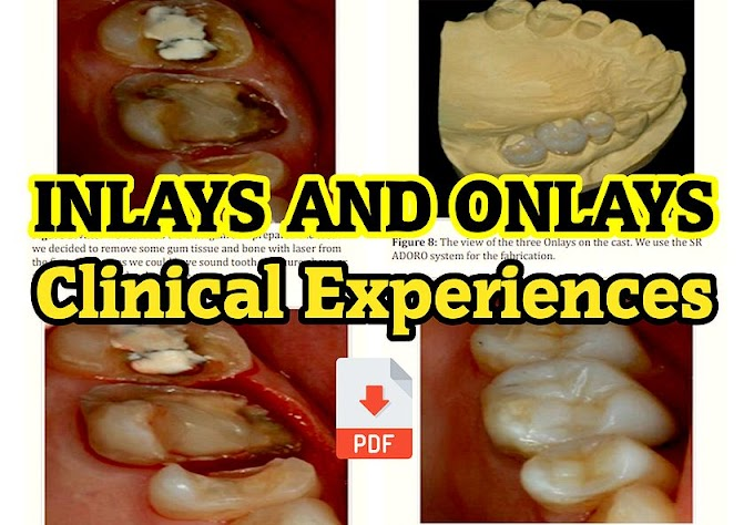 PDF: Inlays and Onlays - Clinical Experiences and Literature Review