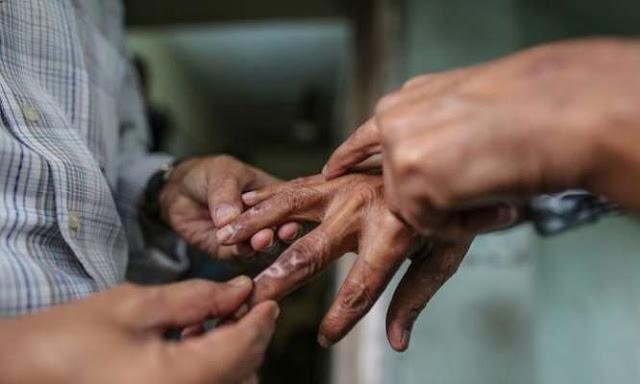 असंसर्गजन्य रोग प्रतिबंध अभियान