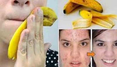 Kulit pisang untuk mengobati jerawat