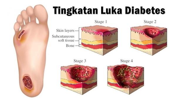 Cara Pengobatan Luka Pada Penderita Diabetes