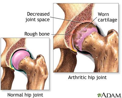 Bile medicale pentru artrita genunchiului. Genunchi cauzează inflamație