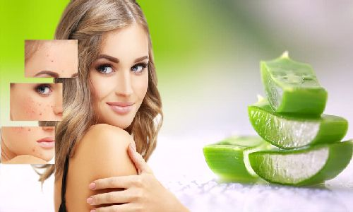 Aloe Vera For Acne - Easy Way To Get Rid Of Acne Overnight