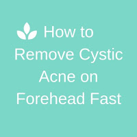 Acute Cystic Acne Facial Removal