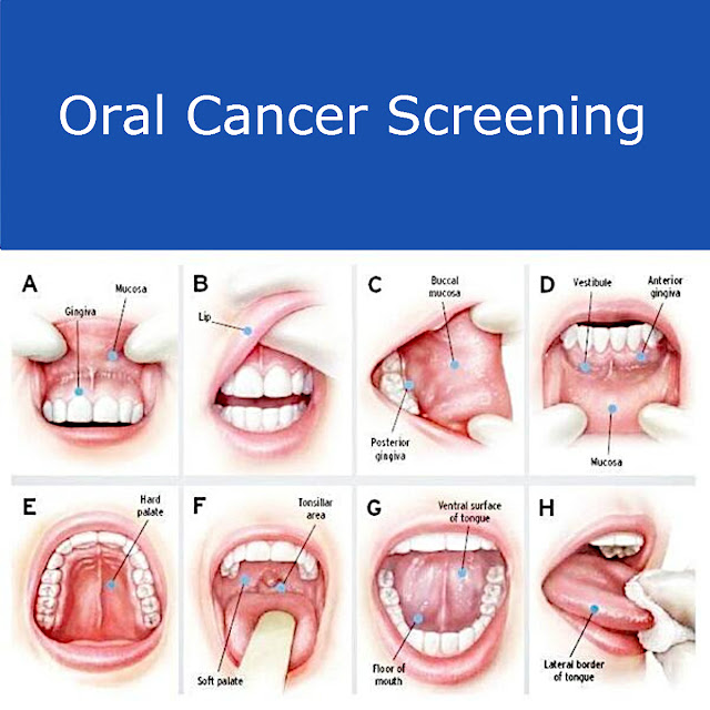 Early Symptoms and Possible Prevention of Oral Cancer