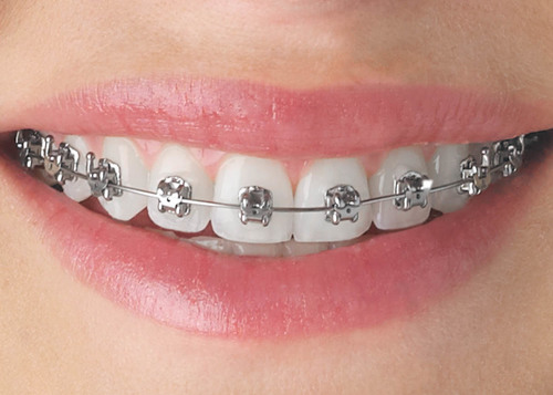 harga pendakap gigi di klinik kerajaan, harga braces untuk pelajar sekolah, pendakap gigi plastik, harga braces 2017, jenis braces, braces murah, klinik ukm braces