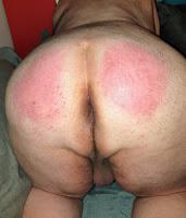 Mes fesses, après que Madame s'en soit occupée, pour me punir, bien rougies par les coups.